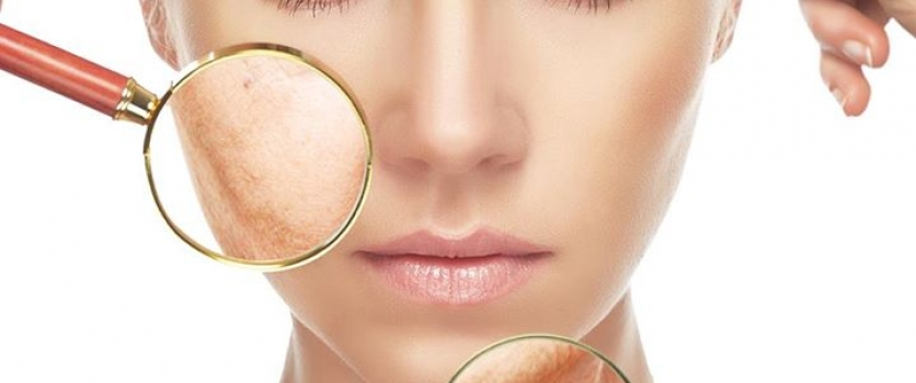 Sun exposure causes visible signs of photoaging. In the early stage, they may ap…