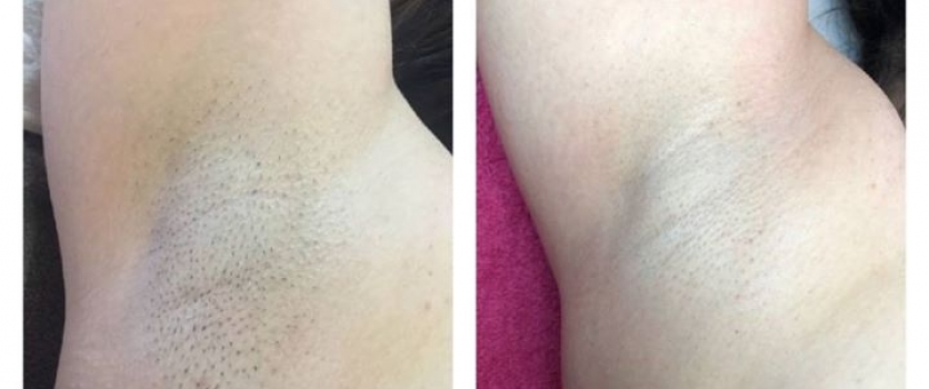 IPL HAIR REMOVAL: Results after only 6 treatments at Doné's