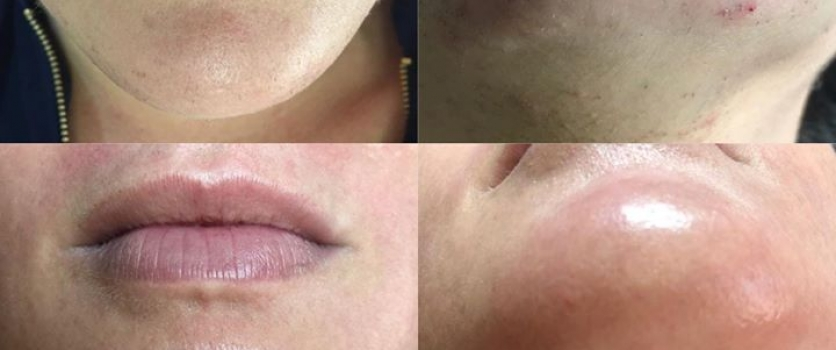 IPL HAIR REMOVAL: Before and After 10 Sessions (each session 6 weeks apart) at D…