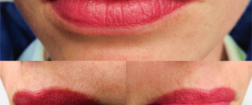 PMU: Healed Lips after one treatment, done with Dóra Hollós Essential Machine at…