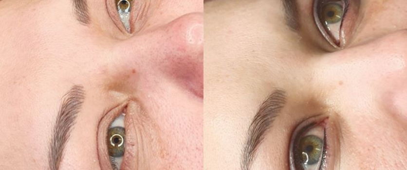 PERMANENT MAKE-UP: Healed brows before eyeliner (left) and directly after eyelin…