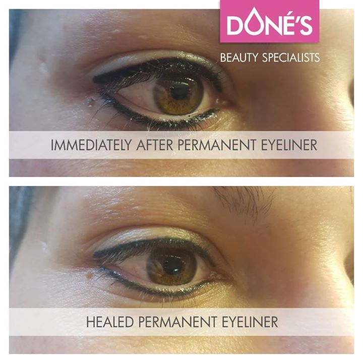 Immediately After- and Healed Permanent Eyeliner (top and