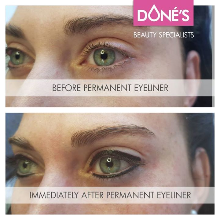 Before- & Immediately After Permanent Eyeliner done at